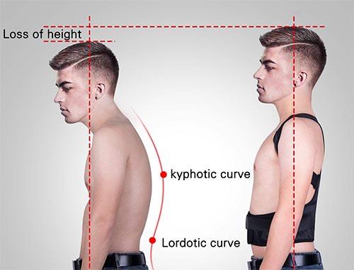 correttore posturale magnetico funziona
